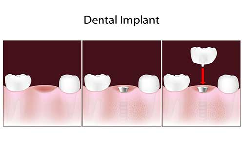 Implant Dentist in Forest Hills
